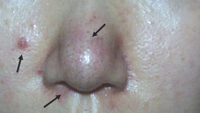 유캔비성형외과피부과의 듀플렉스